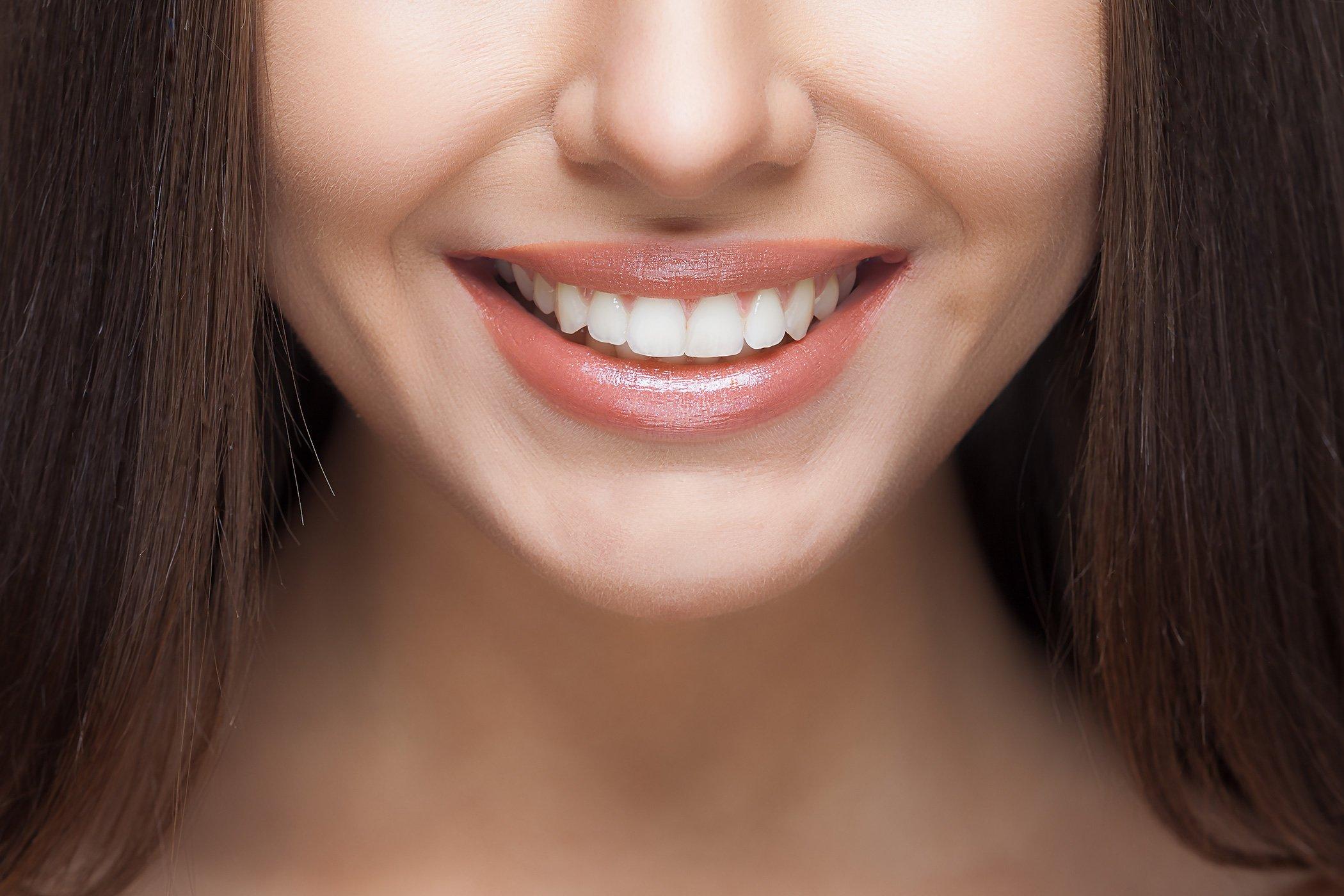 Sbiancamento denti eraclea