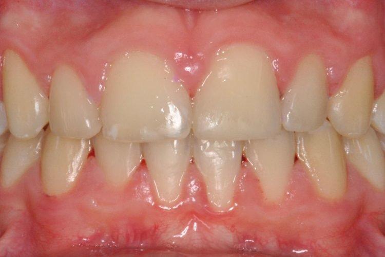 Allineamento denti Eraclea