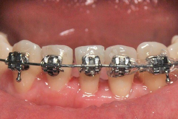 Apparecchi dentali San Donà di Piave