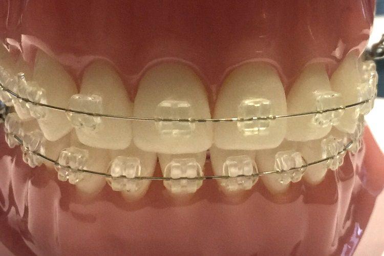 Apparecchi denti Eraclea
