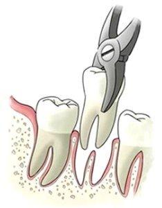 Estrazione denti San Donà di Piave