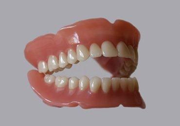Protesi denti mobili e fisse