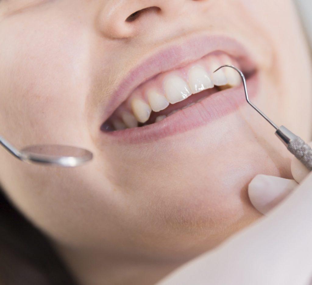 Trattamenti per parodontite Eraclea